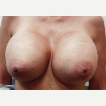 45-54 year old woman treated with Breast Implant Revision before 3108363