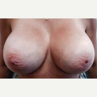 45-54 year old woman treated with Breast Implant Revision after 3108363