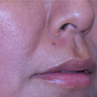 35 year old woman treated with Mole Removal from upper lip after 2687961