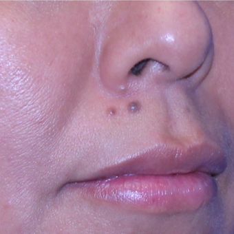 35 year old woman treated with Mole Removal from upper lip before 2687961