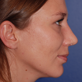 25-34 year old woman treated with Rhinoplasty after 3624000