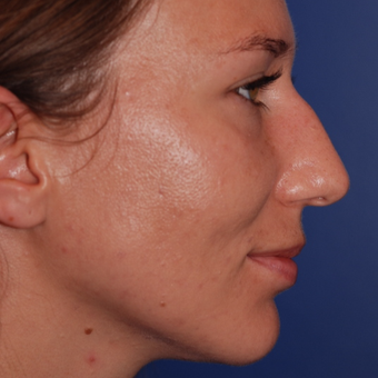 25-34 year old woman treated with Rhinoplasty before 3624000