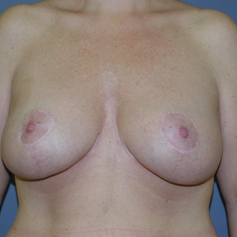 41 year old woman treated with Breast Lift after 3042790
