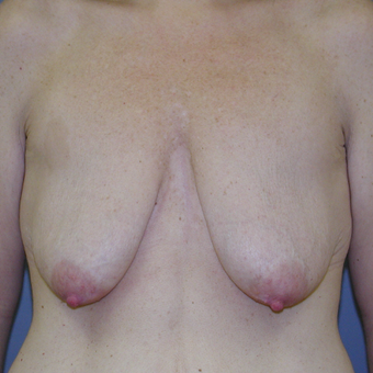 41 year old woman treated with Breast Lift before 3042790