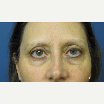 45-54 year old woman treated with Eyelid Surgery before 3383991