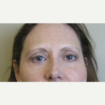 45-54 year old woman treated with Eyelid Surgery after 3383991