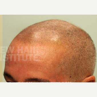 65-74 year old man treated with Scalp Micropigmentation after 3093192