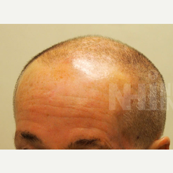 65-74 year old man treated with Scalp Micropigmentation before 3093192