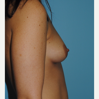 25-34 year old woman treated with Breast Augmentation before 3060893