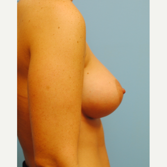 25-34 year old woman treated with Breast Augmentation after 3060893