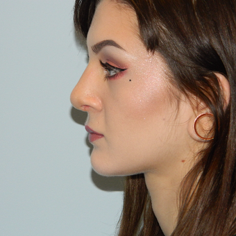18-24 year old woman treated with Rhinoplasty after 3506006