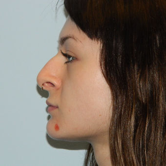 18-24 year old woman treated with Rhinoplasty before 3506006