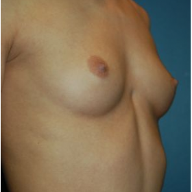 Breast Augmentation before 3720783