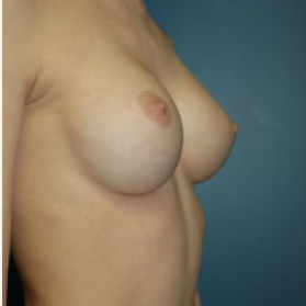 Breast Augmentation after 3720783