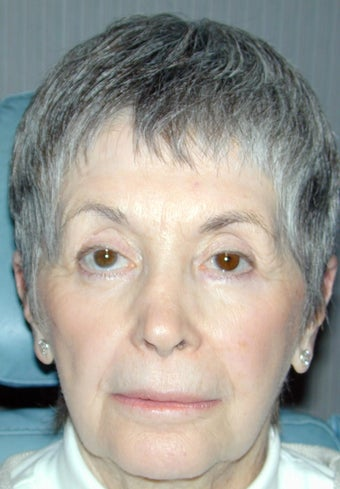 Laser resurfacing blepharoplasty, and ptosis repair