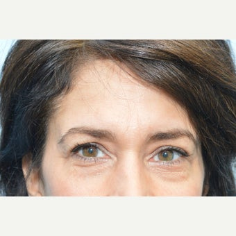 45-54 year old woman treated with Restylane before 1959966