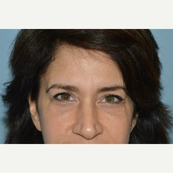 45-54 year old woman treated with Restylane after 1959966