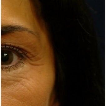 Chemical Brow Lift with Botox before 1559013