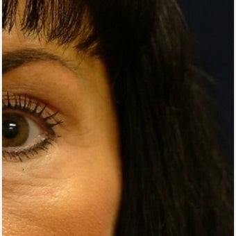 Chemical Brow Lift with Botox after 1559013