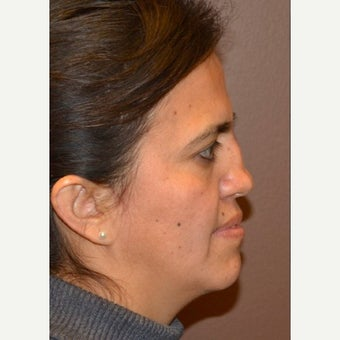 35-44 year old woman treated with Revision Rhinoplasty 1950432