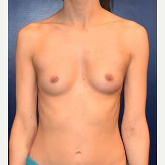 25-34 year old woman treated with Nipple Surgery before 3013636