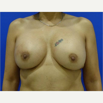 45-54 year old woman treated with Breast Implant Revision after 3744624