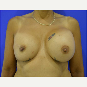 45-54 year old woman treated with Breast Implant Revision before 3744624