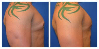 Young Male Treated for Large Breasts after 1367257