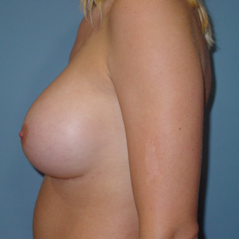 25-34 year old woman treated with Breast Augmentation after 3059511