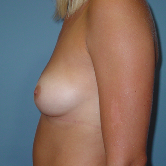 25-34 year old woman treated with Breast Augmentation before 3059511
