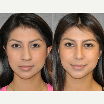 18-24 year old woman treated with Rhinoplasty before 3176112