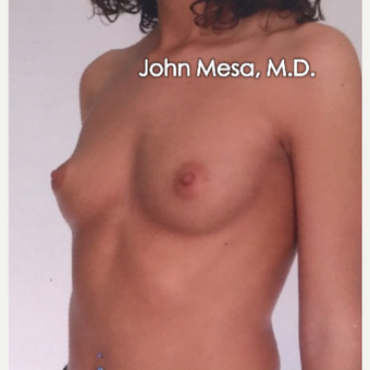 25-34 year old woman treated with Sientra Breast Implants before 3266836