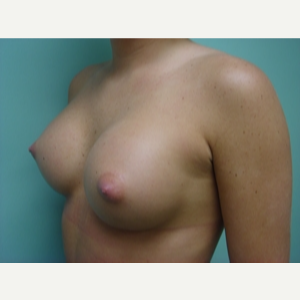 35-44 year old woman treated with Breast Augmentation after 3168182