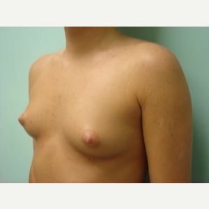 35-44 year old woman treated with Breast Augmentation before 3168182