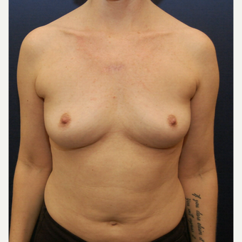 45-54 year old woman treated with Breast Augmentation before 3726764
