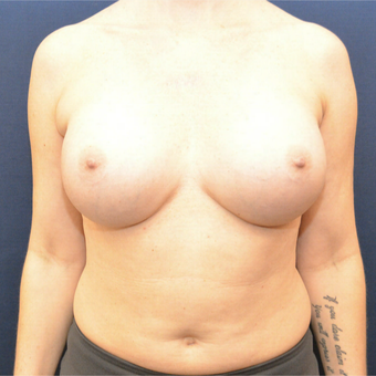 45-54 year old woman treated with Breast Augmentation after 3726764