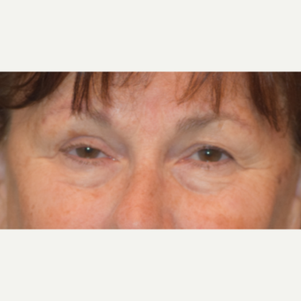 65-74 year old woman treated with Eyelid Surgery before 3487190
