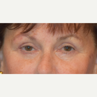 65-74 year old woman treated with Eyelid Surgery after 3487190