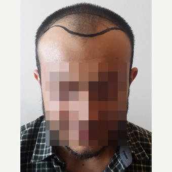 18-24 year old man treated with FUE Hair Transplant before 3729943