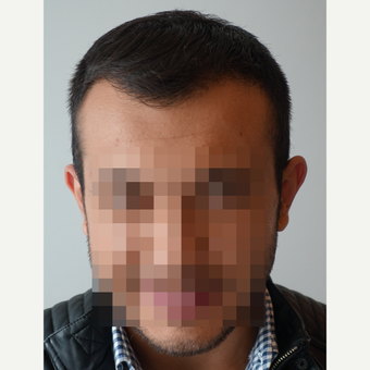 18-24 year old man treated with FUE Hair Transplant after 3729943