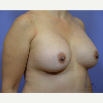 45-54 year old woman treated with Breast Augmentation after 3386403
