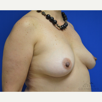 45-54 year old woman treated with Breast Augmentation before 3386403