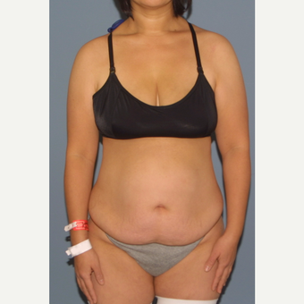 35-44 year old woman treated with Tummy Tuck before 3531220