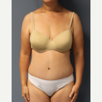 35-44 year old woman treated with Tummy Tuck after 3531220