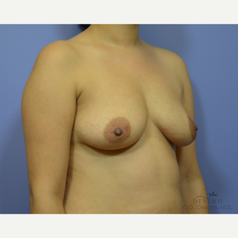 25-34 year old woman treated with Breast Augmentation before 3386420