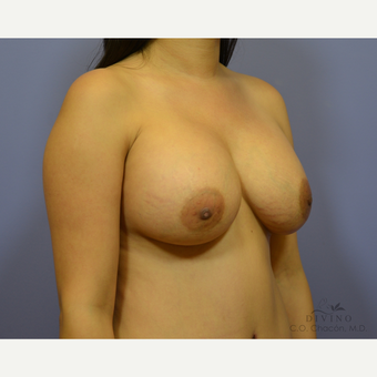 25-34 year old woman treated with Breast Augmentation after 3386420