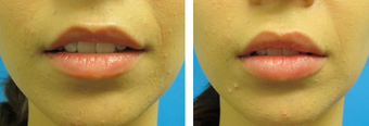 28 Year Old Female for Lip Augmentation  before 1065927