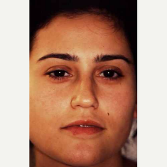 25-34 year old woman treated with Rhinoplasty before 3521219