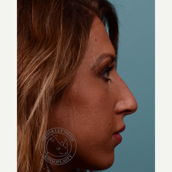 25-34 year old woman treated with open Rhinoplasty/septoplasty before 3093967