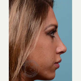 25-34 year old woman treated with open Rhinoplasty/septoplasty after 3093967